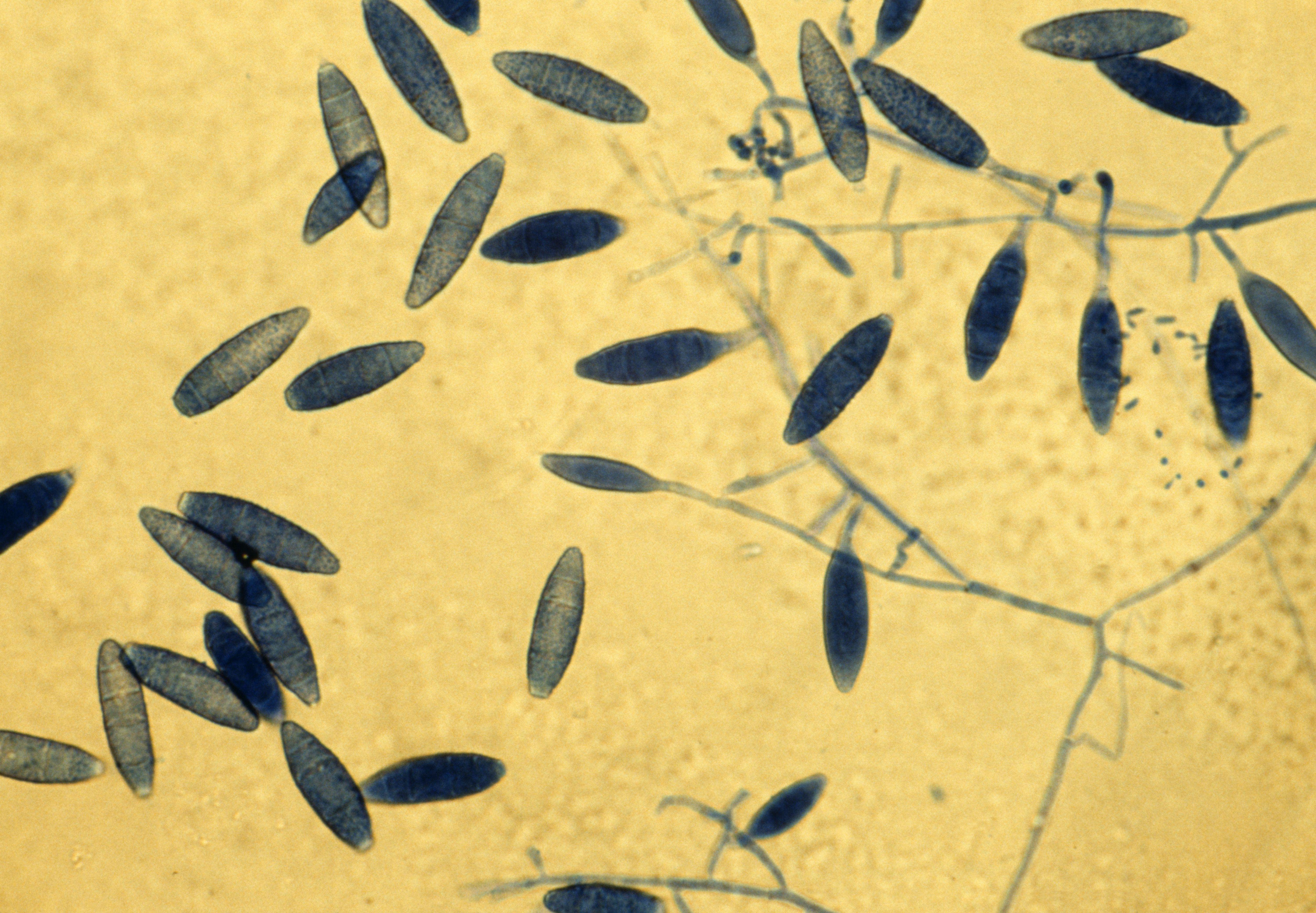 Light micrograph of the ringworm fungus