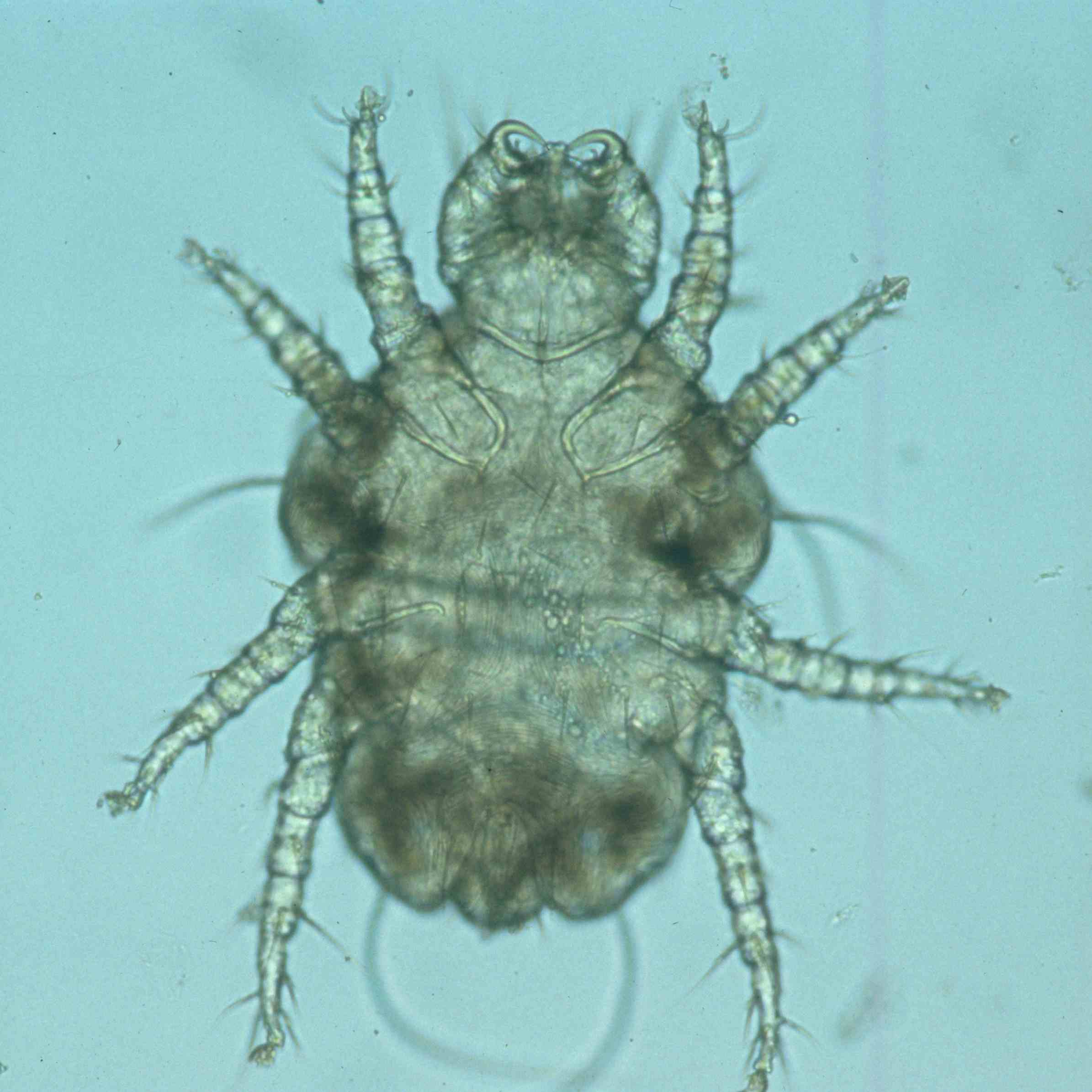 Cheyletiella Mites