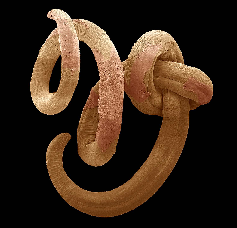 A single threadworm.