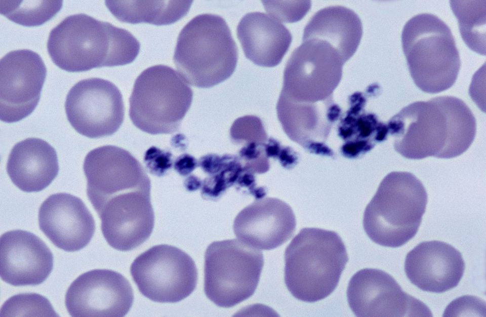 Clumped platelets among red blood cells under a microscope.
