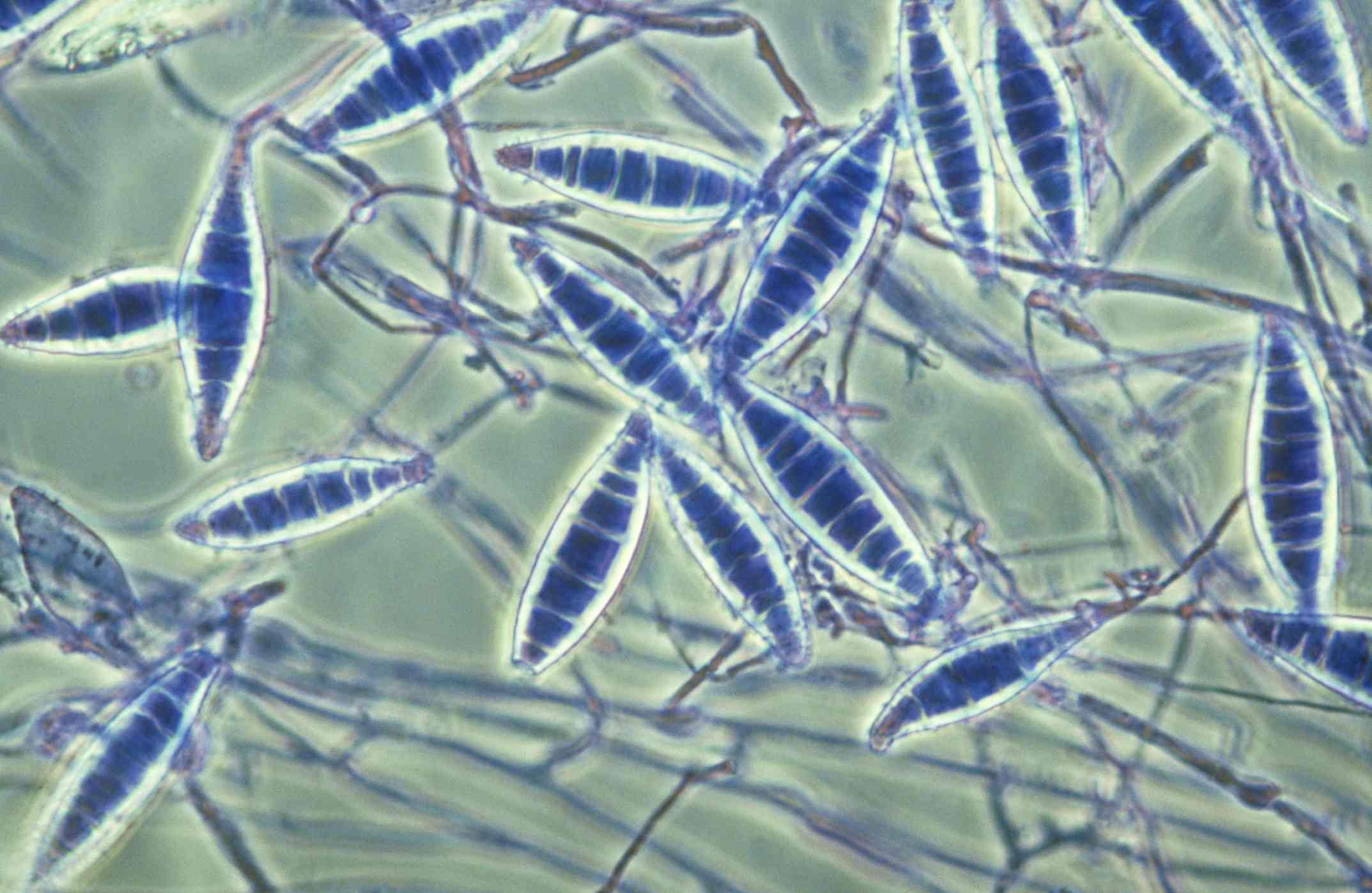 Tiña microsporum teñida de púrpura