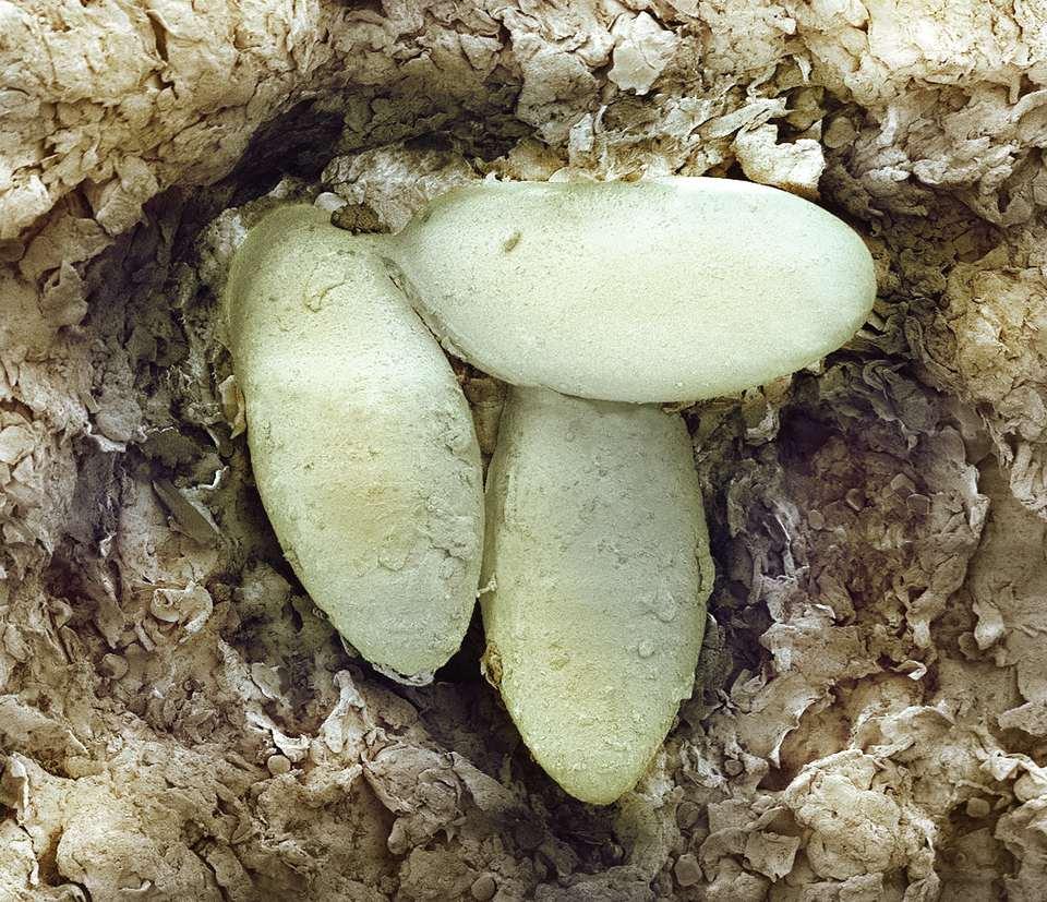 Sarcoptic sarna huevos de ácaros, SEM