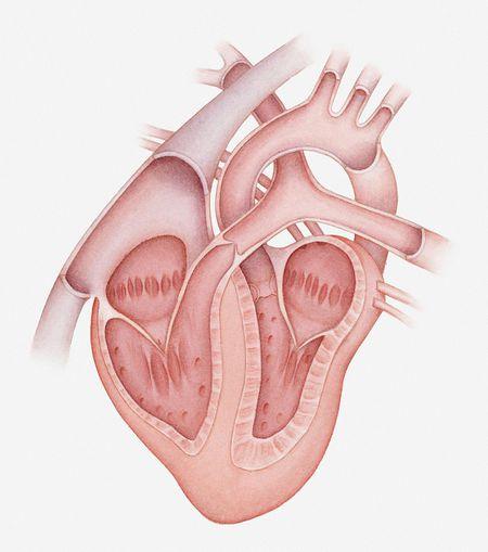 Heart disease tricuspid valve disease in dogs ccuart Gallery