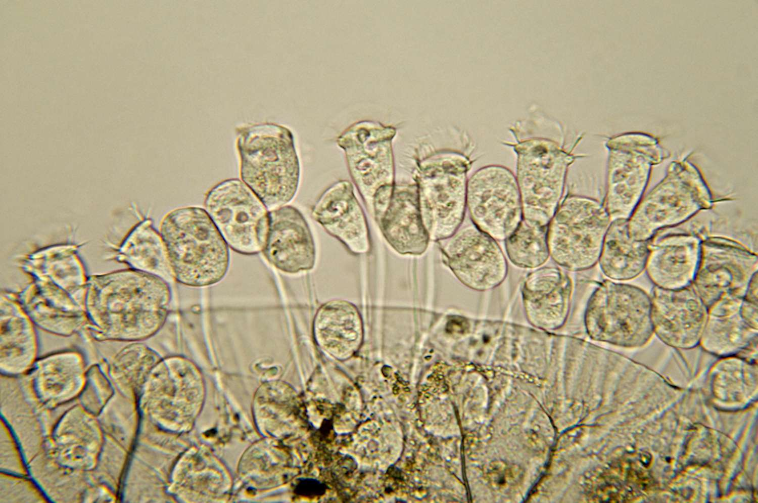 A micrograph of the vorticella species