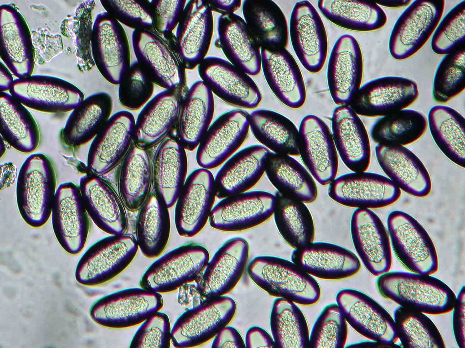 Image of pinworms.