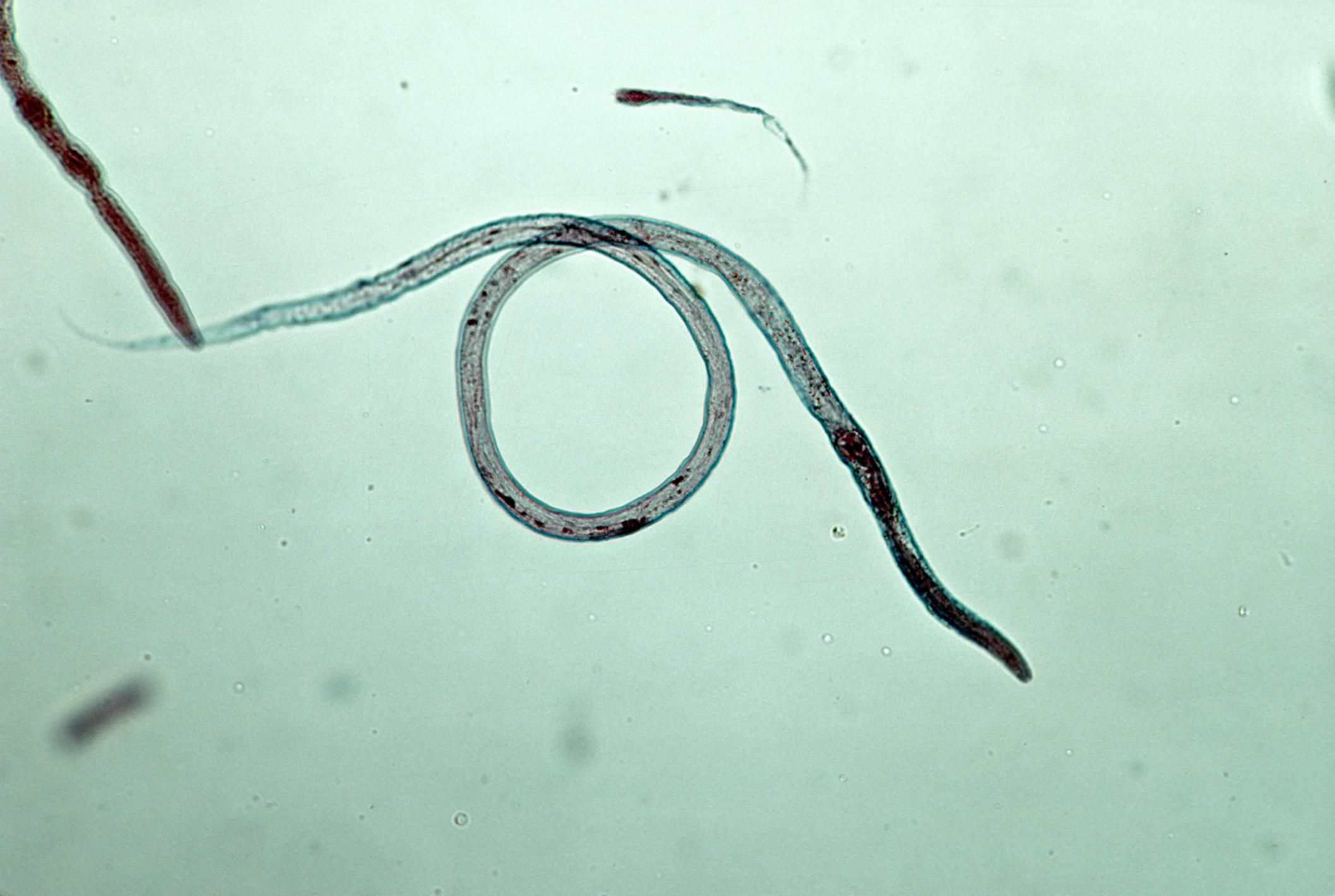 How To Treat Roundworms In Puppies And Dogs